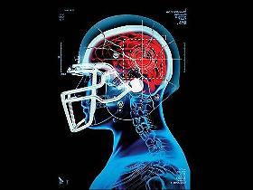 ¿El football genera patologías cerebrales o los cerebros enfermos buscan el football?